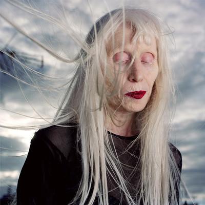 """Ana"" de la serie Albino Beauty"