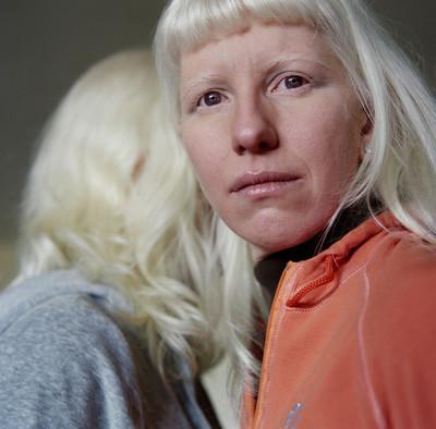 """""""Anna"""" de la serie Albino Beauty"""