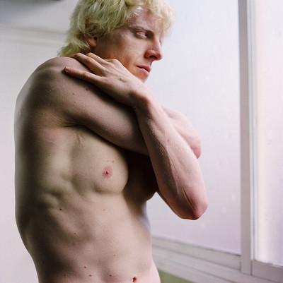 """Dani I "" de la serie Albino Beauty"