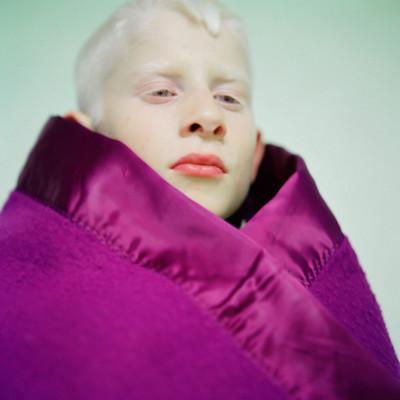 """""""Daud I"""" de la serie Albino Beauty"""