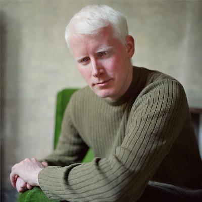 """""""Kevin"""" de la serie Albino Beauty"""